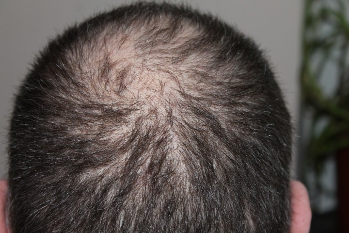 9 Important Reason that Influence Male Hair Loss   6 Habits to Prevent Losing Hair or Balding
